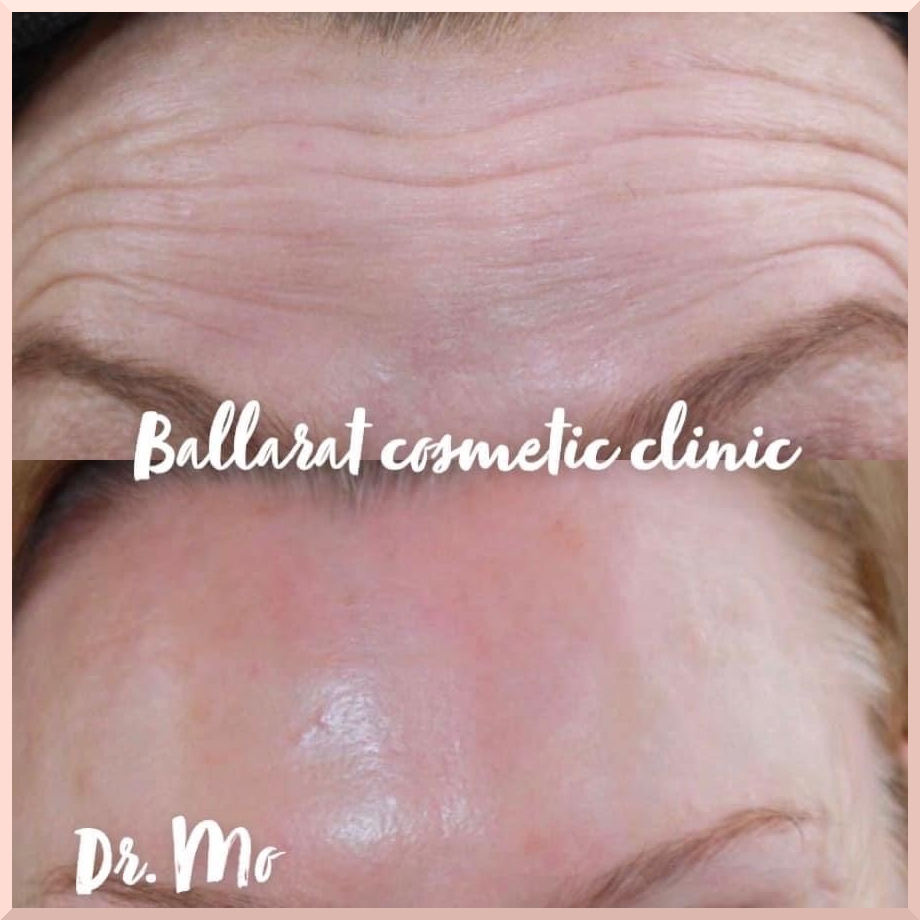 anti-wrinkle before after