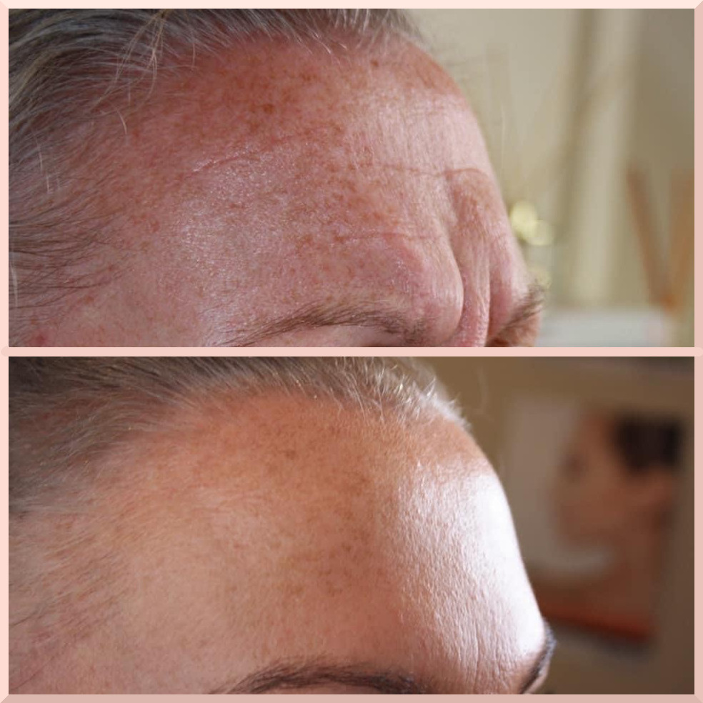 forehead botox before after