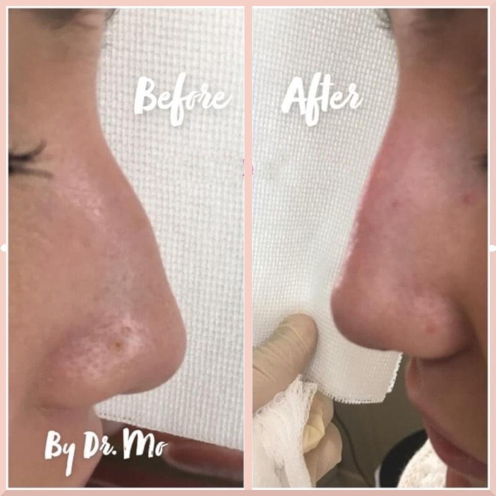 nose filler before after