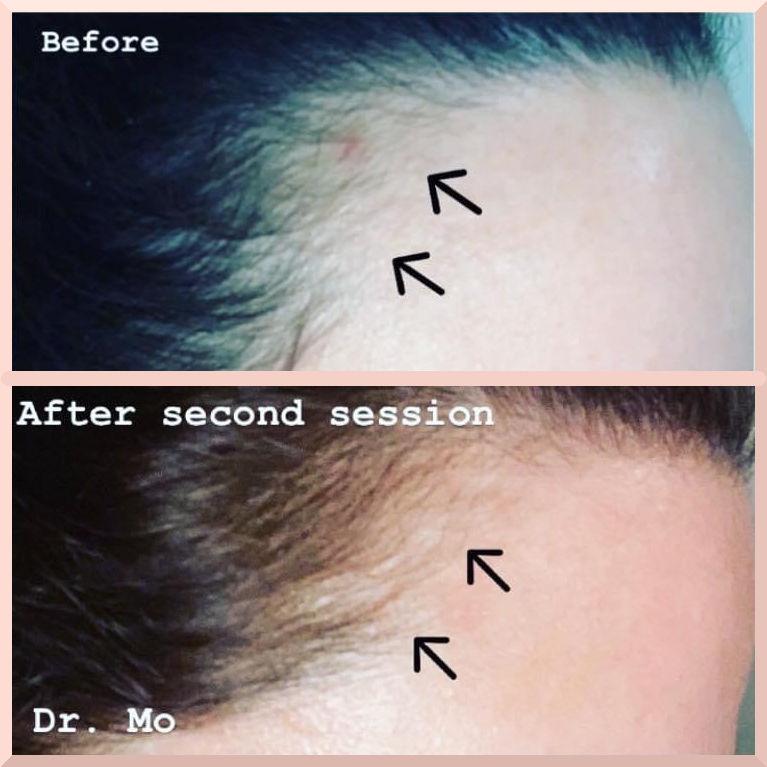 prp treatment hair growth