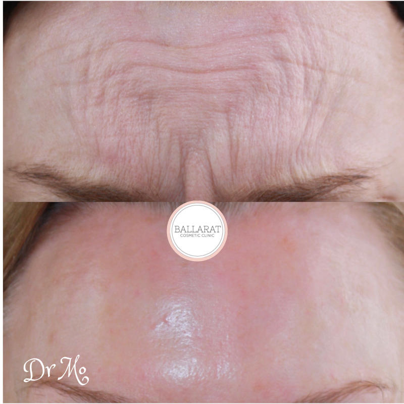 Forehead Anti-Wrinkle