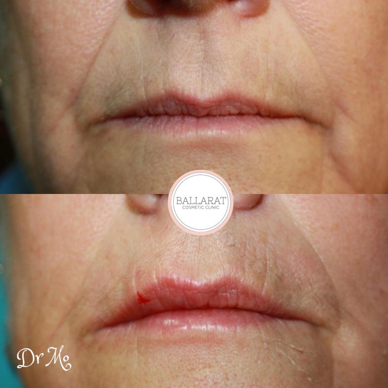 Lip Filler Front Before and After
