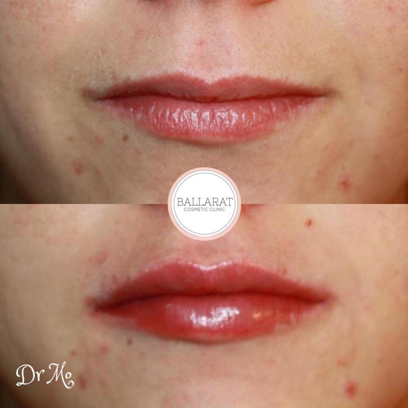 Lip Filler Front